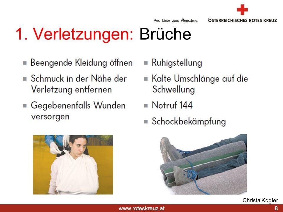 21.03.2017 1. Verletzungen: Brüche Christa Kogler