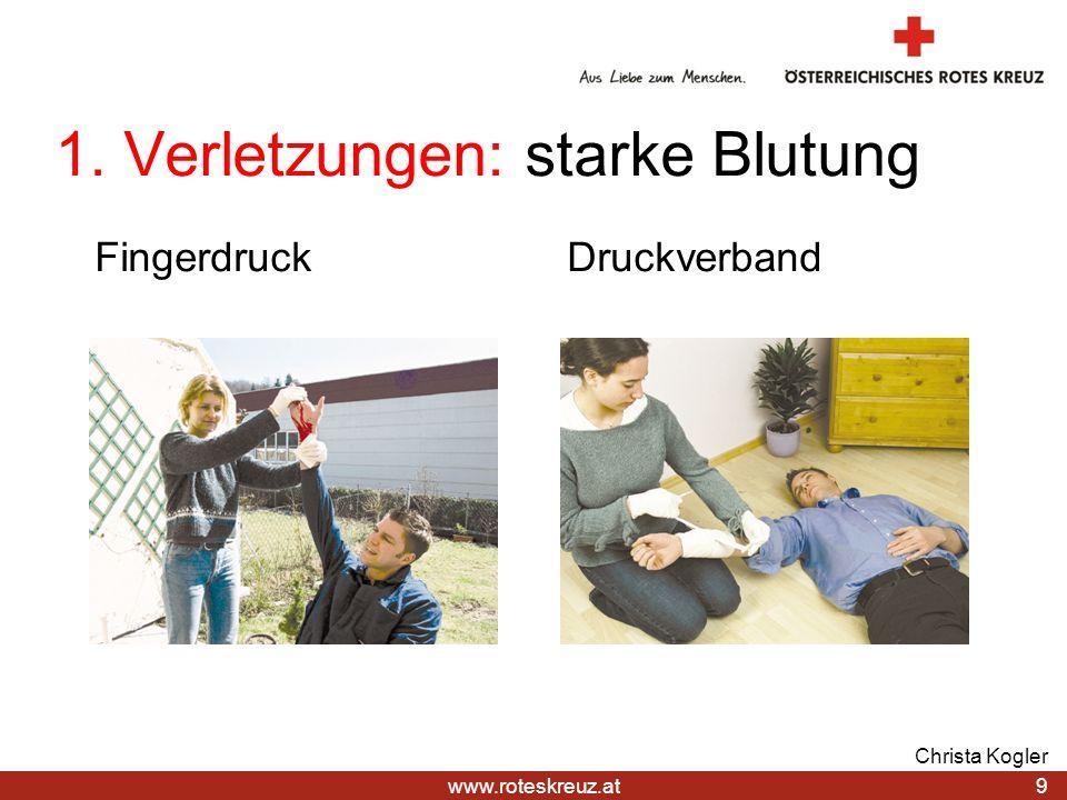 1. Verletzungen: starke Blutung
