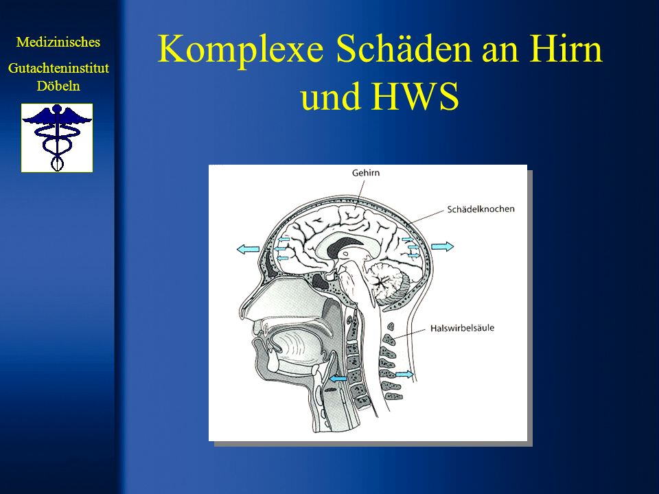 Komplexe Schäden an Hirn und HWS