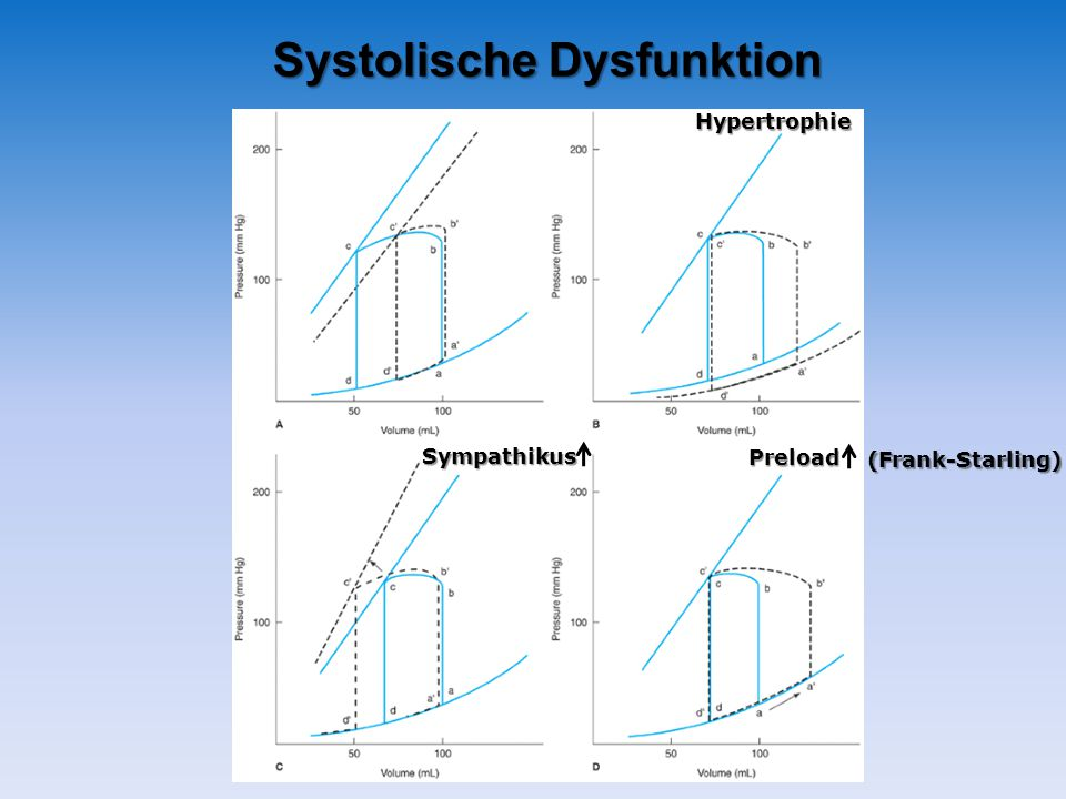 Systolische Dysfunktion