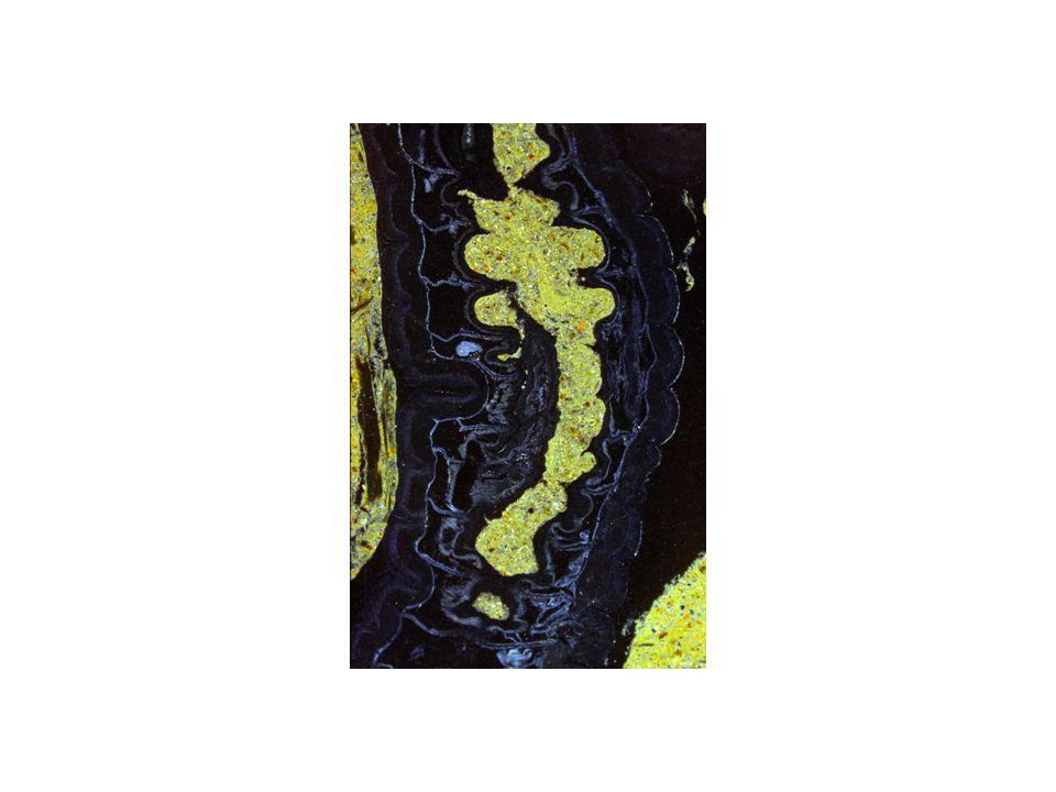 Diese Dünnschliffaufnahme erinnert daran, dass sich manche Regenwürmer nicht einfach durch den Boden wühlen, sondern fressen.
