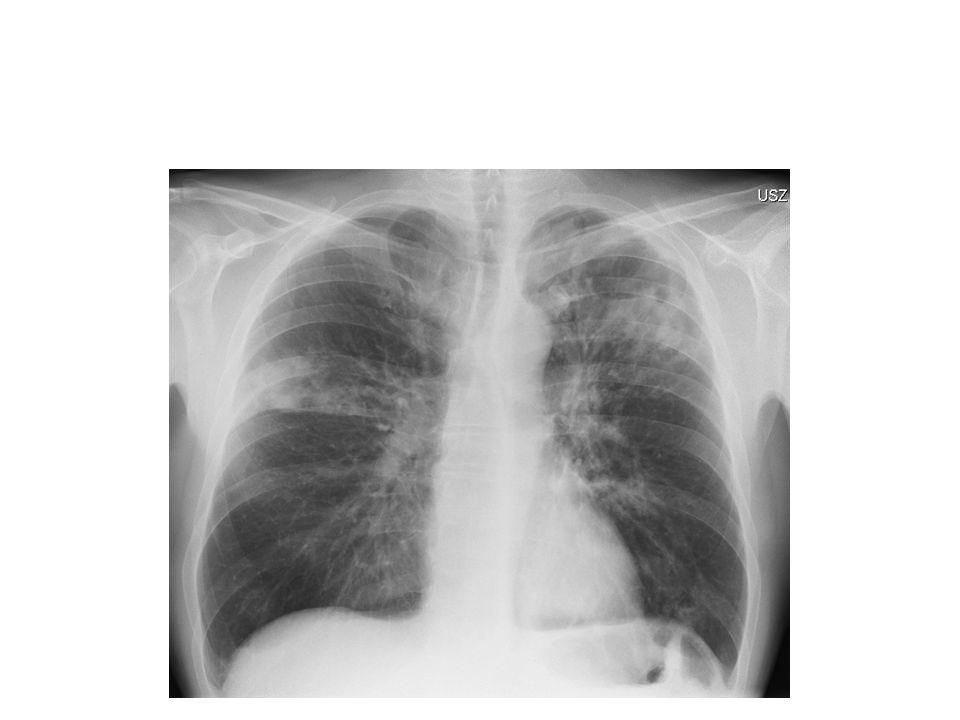 Thoraxröntgen Aug 2008 zeigte prominente Lungenpathologie