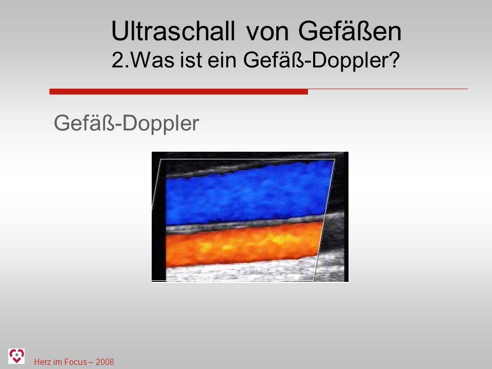 Ultraschall von Gefäßen 2.Was ist ein Gefäß-Doppler