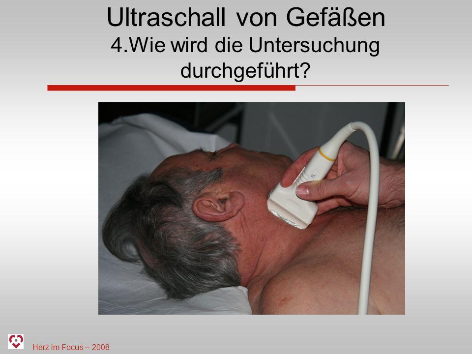 Ultraschall von Gefäßen 4.Wie wird die Untersuchung durchgeführt