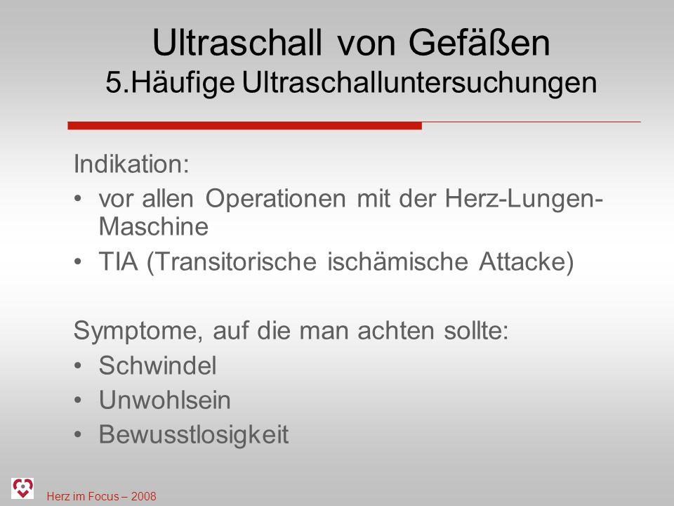 Ultraschall von Gefäßen 5.Häufige Ultraschalluntersuchungen
