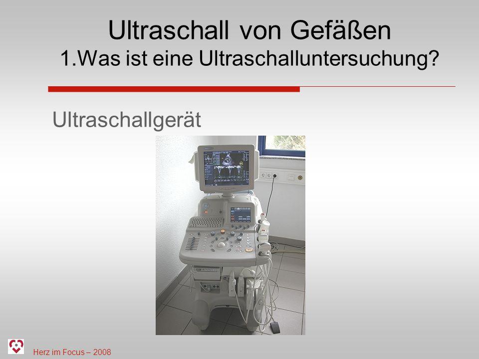Ultraschall von Gefäßen 1.Was ist eine Ultraschalluntersuchung