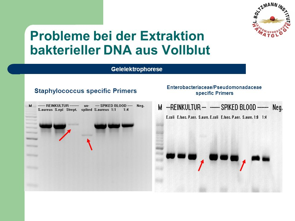 Probleme bei der Extraktion bakterieller DNA aus Vollblut