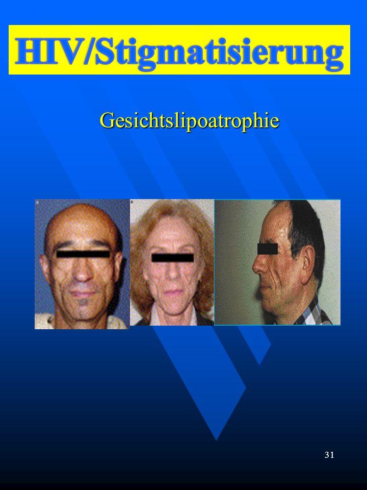 Gesichtslipoatrophie