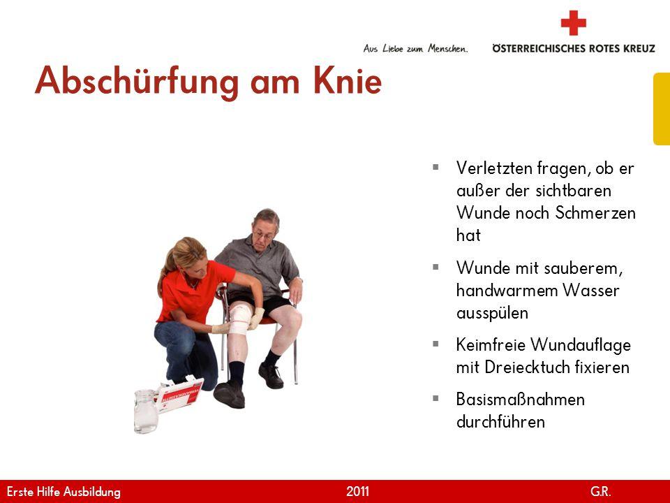 Abschürfung am Knie Verletzten fragen, ob er außer der sichtbaren Wunde noch Schmerzen hat. Wunde mit sauberem, handwarmem Wasser ausspülen.