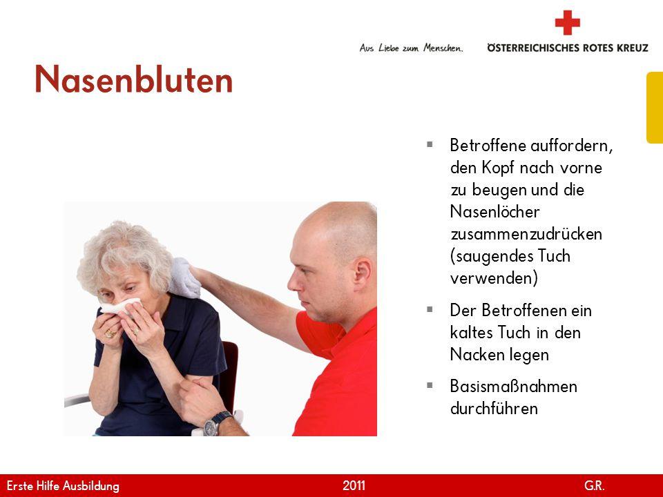 Nasenbluten Betroffene auffordern, den Kopf nach vorne zu beugen und die Nasenlöcher zusammenzudrücken (saugendes Tuch verwenden)