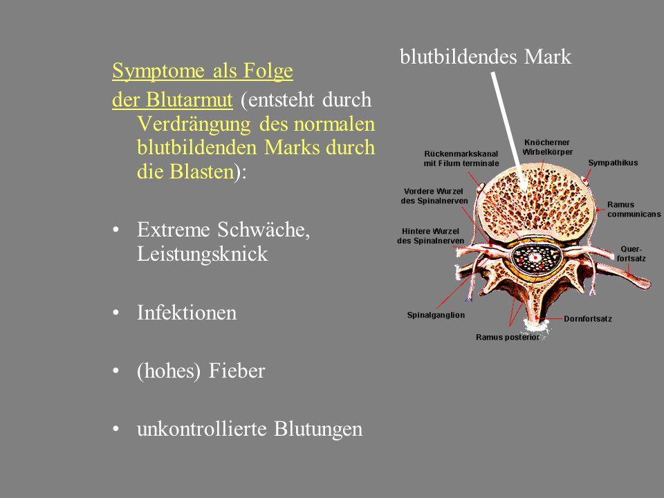 blutbildendes Mark Symptome als Folge. der Blutarmut (entsteht durch Verdrängung des normalen blutbildenden Marks durch die Blasten):