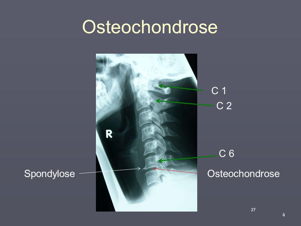 Osteochondrose C 1 C 2 C 6 Spondylose Osteochondrose