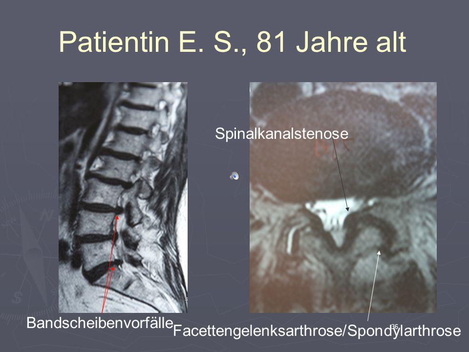 Patientin E. S., 81 Jahre alt Spinalkanalstenose Bandscheibenvorfälle