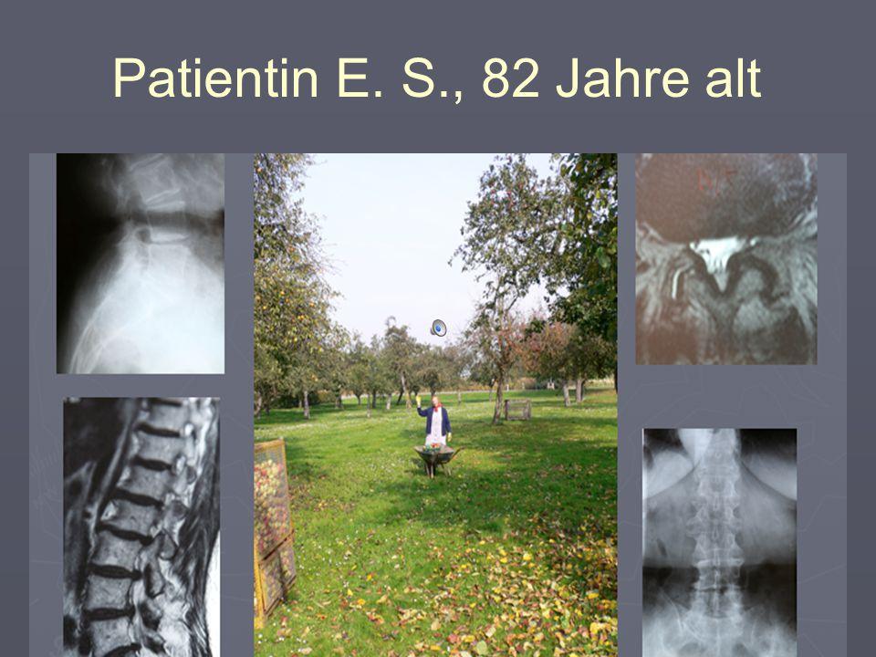 Patientin E. S., 82 Jahre alt