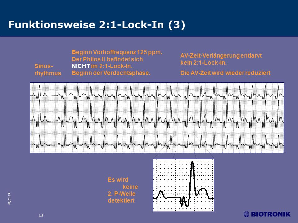 Funktionsweise 2:1-Lock-In (3)