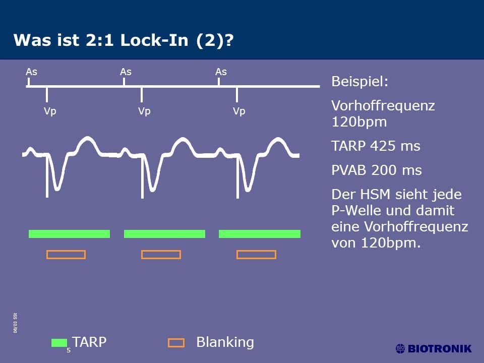 Was ist 2:1 Lock-In (2) Beispiel: Vorhoffrequenz 120bpm TARP 425 ms