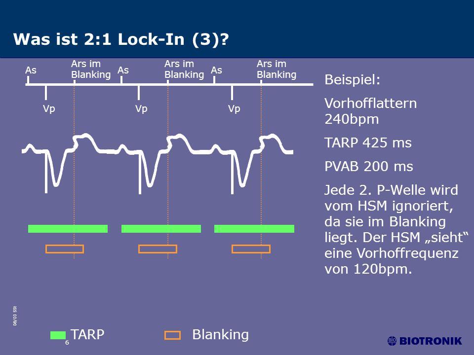 Was ist 2:1 Lock-In (3) Beispiel: Vorhofflattern 240bpm TARP 425 ms