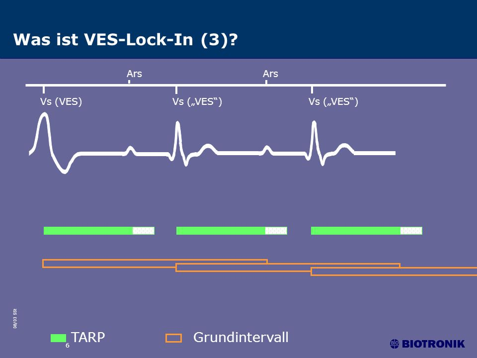 Was ist VES-Lock-In (3) TARP Grundintervall Ars Ars Vs (VES)