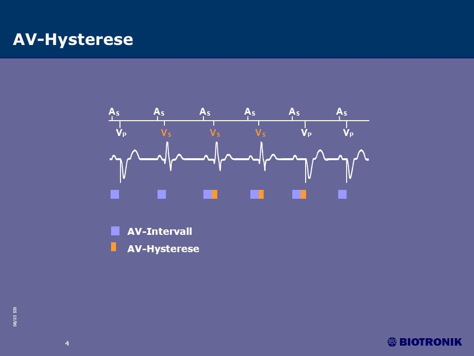 AV-Hysterese AS VP VS AV-Intervall AV-Hysterese 4