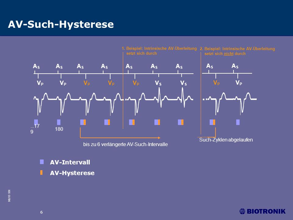 AV-Such-Hysterese AS VP VS AV-Intervall AV-Hysterese ...179 180
