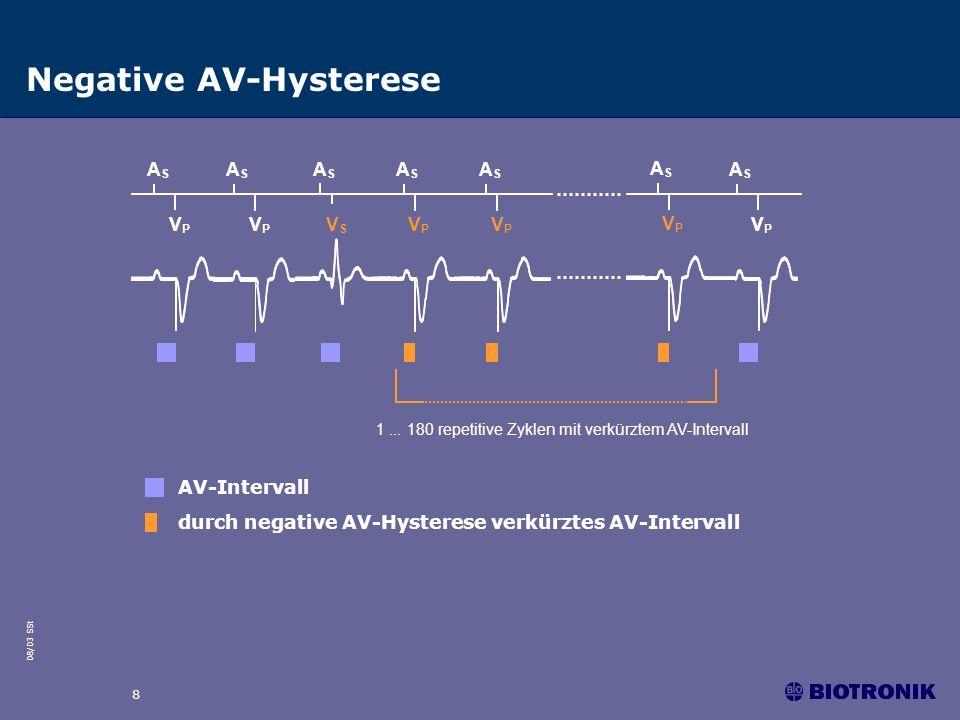 Negative AV-Hysterese