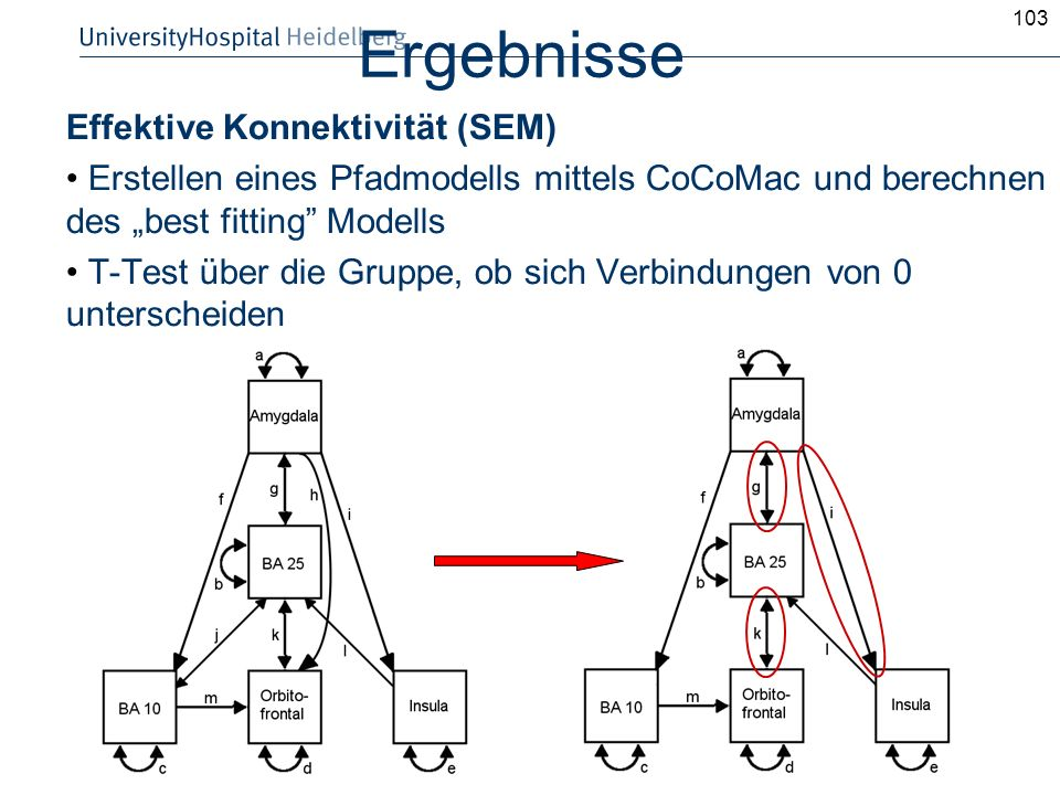 Ergebnisse Effektive Konnektivität (SEM)