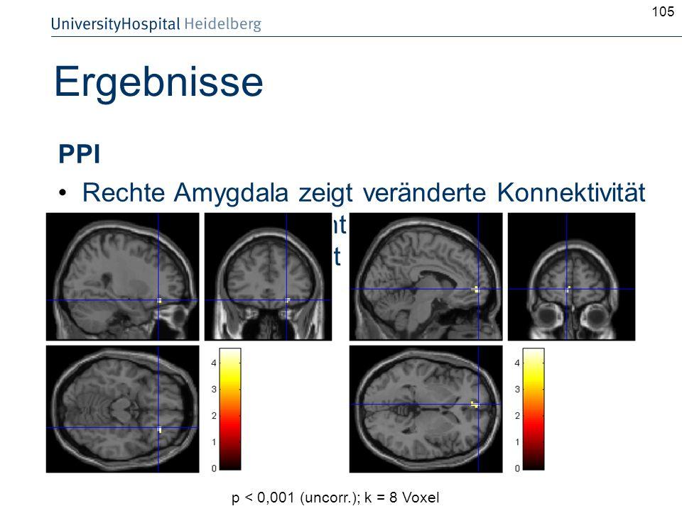 105Ergebnisse. PPI. Rechte Amygdala zeigt veränderte Konnektivität mit rechtem orbitofrontalem Cortex und linkem BA 10 in Abhängigkeit der Condition.