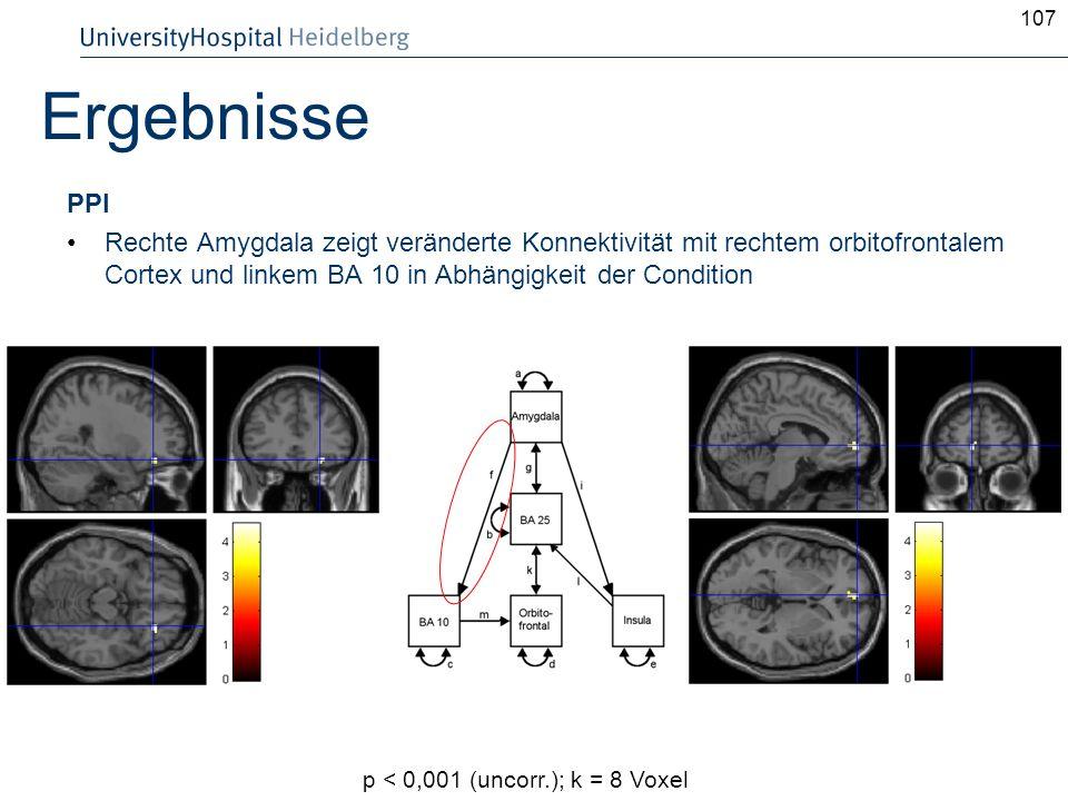 107Ergebnisse. PPI. Rechte Amygdala zeigt veränderte Konnektivität mit rechtem orbitofrontalem Cortex und linkem BA 10 in Abhängigkeit der Condition.