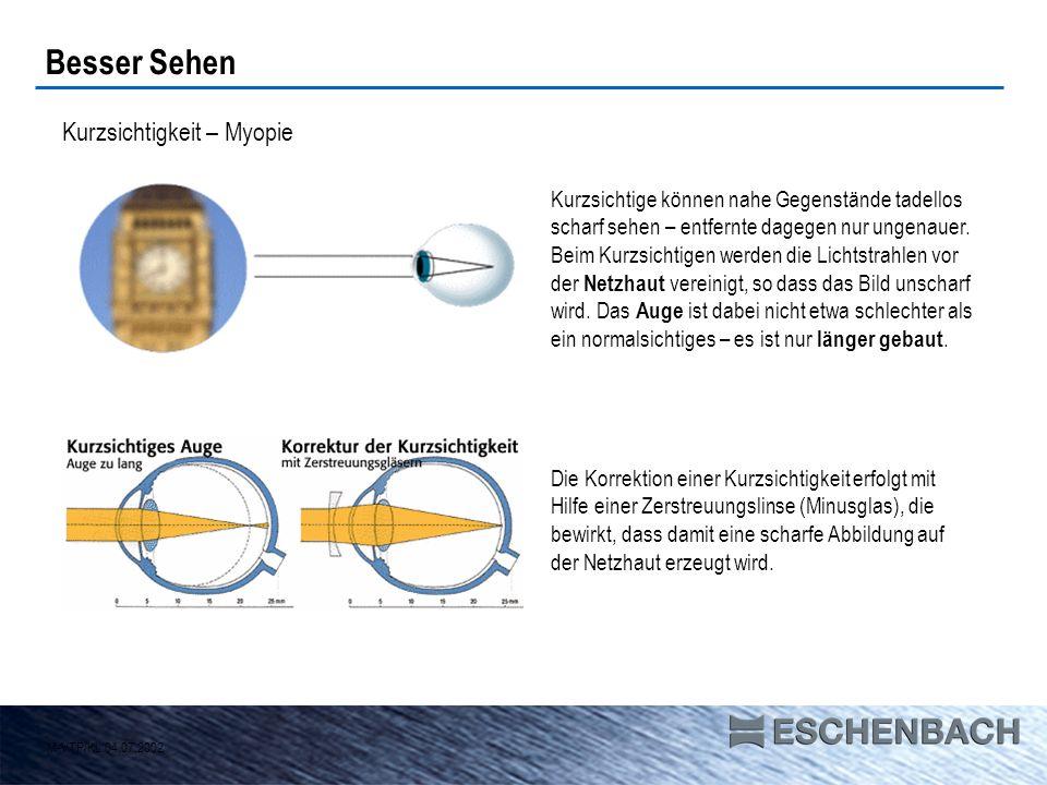 Besser Sehen Kurzsichtigkeit – Myopie