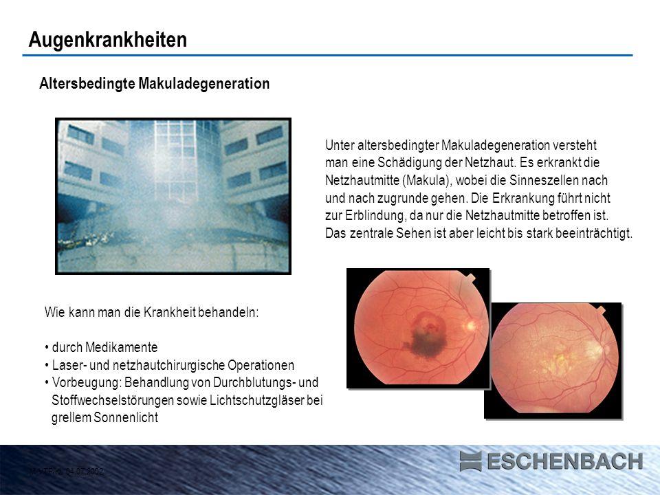 Augenkrankheiten Altersbedingte Makuladegeneration