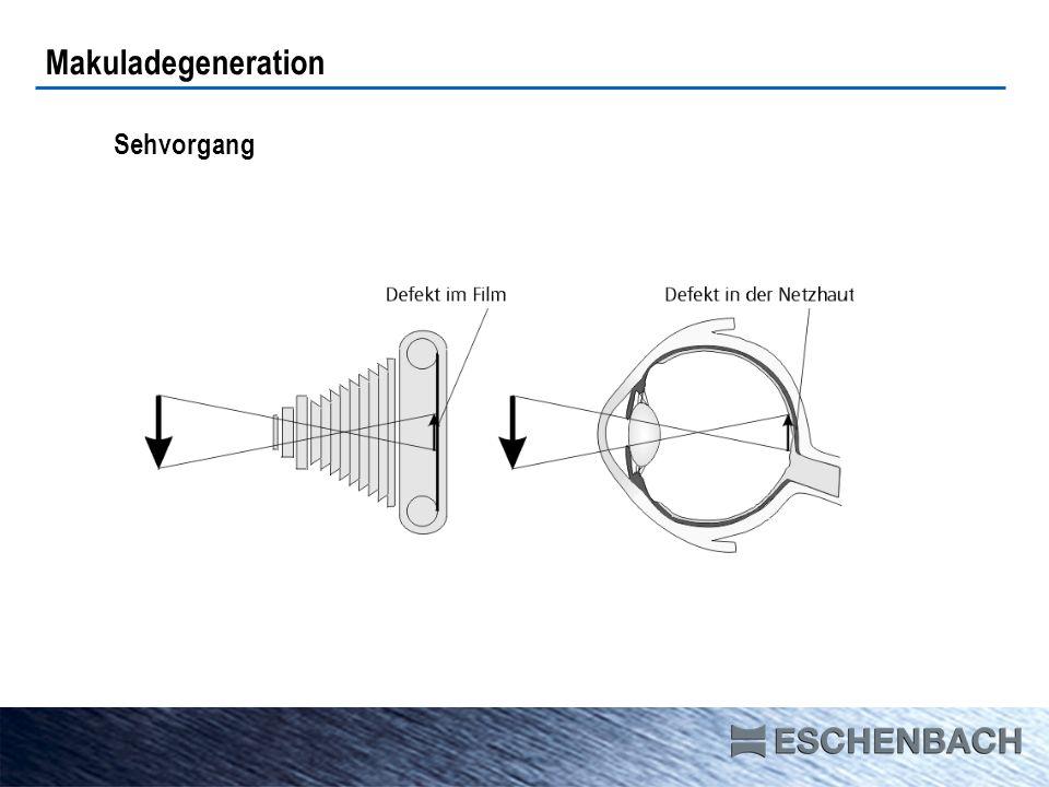 Makuladegeneration Sehvorgang