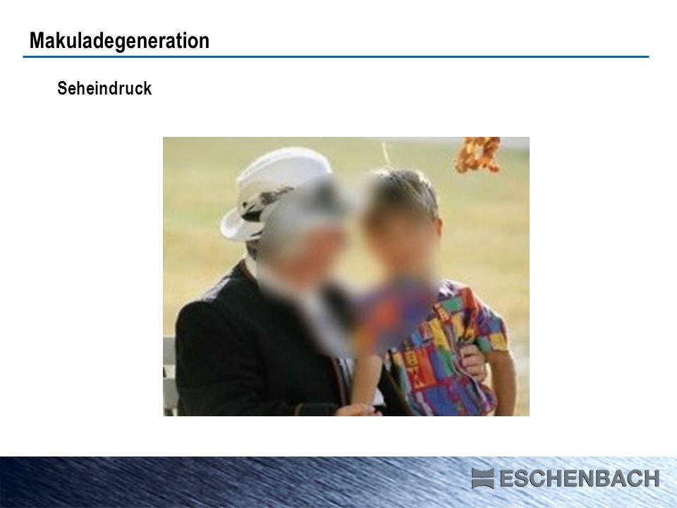 Makuladegeneration Seheindruck