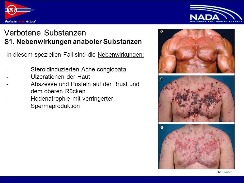 Verbotene Substanzen S1. Nebenwirkungen anaboler Substanzen