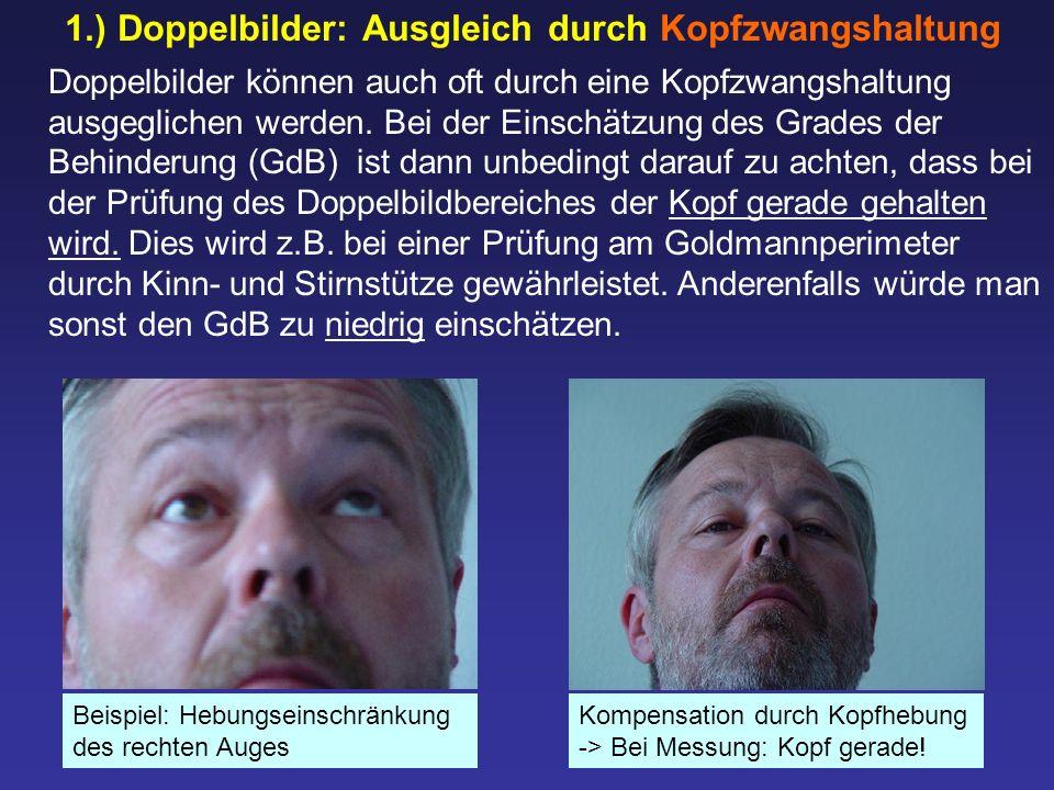 1.) Doppelbilder: Ausgleich durch Kopfzwangshaltung