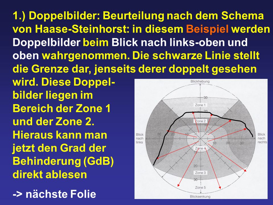 1.) Doppelbilder: Beurteilung nach dem Schema von Haase-Steinhorst: in diesem Beispiel werden Doppelbilder beim Blick nach links-oben und oben wahrgenommen. Die schwarze Linie stellt die Grenze dar, jenseits derer doppelt gesehen wird. Diese Doppel- bilder liegen im Bereich der Zone 1 und der Zone 2. Hieraus kann man jetzt den Grad der Behinderung (GdB) direkt ablesen