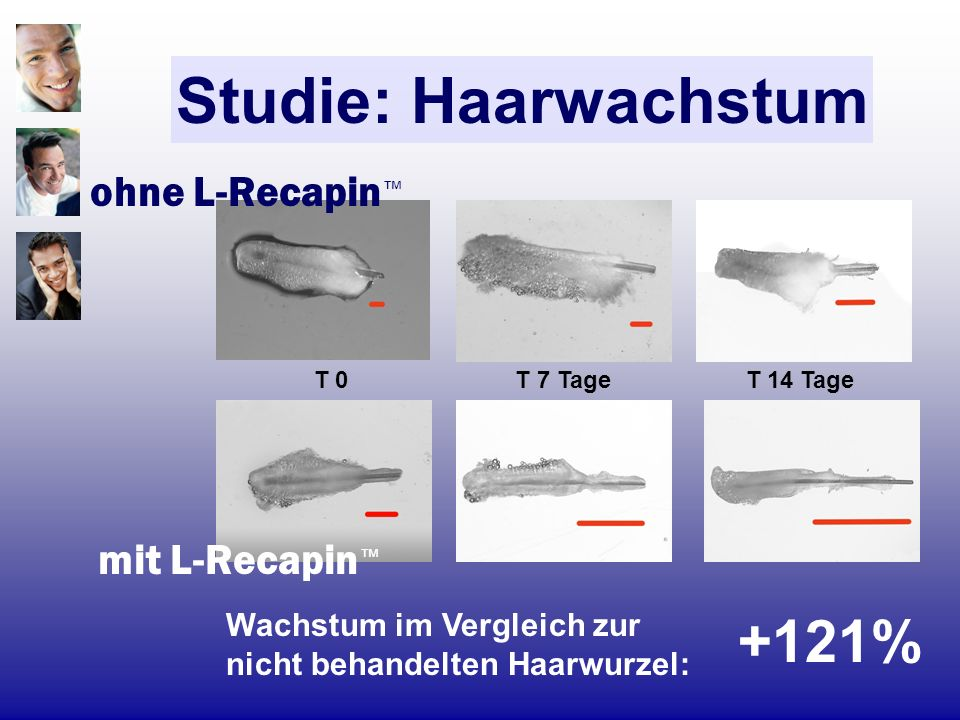 Studie: Haarwachstum +121% ohne L-Recapin™ mit L-Recapin™