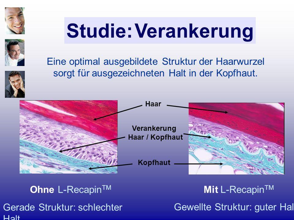 Studie: Verankerung Eine optimal ausgebildete Struktur der Haarwurzel sorgt für ausgezeichneten Halt in der Kopfhaut.