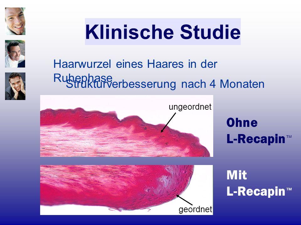 Klinische Studie Ohne L-Recapin™ Mit L-Recapin™