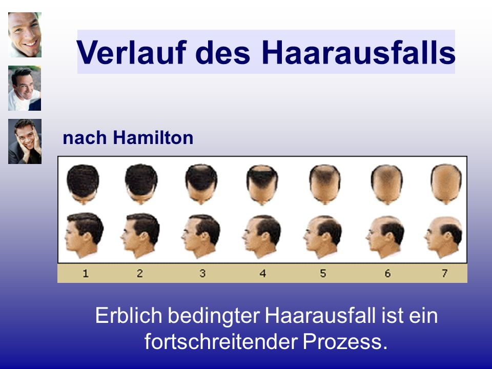 Verlauf des Haarausfalls