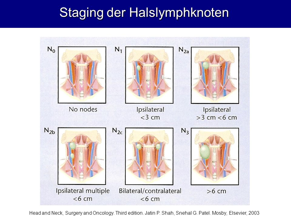 Staging der Halslymphknoten