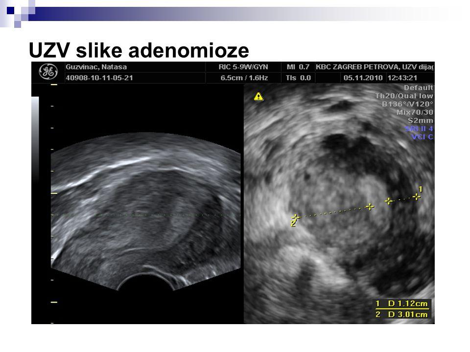 UZV slike adenomioze