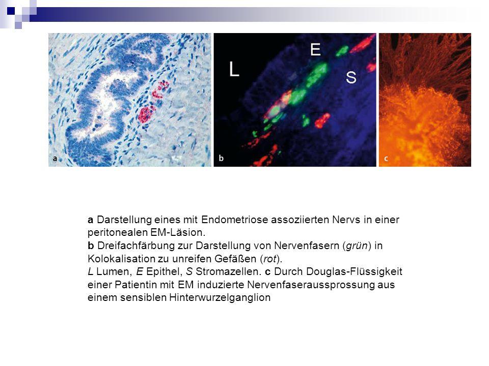 a Darstellung eines mit Endometriose assoziierten Nervs in einer peritonealen EM-Läsion.