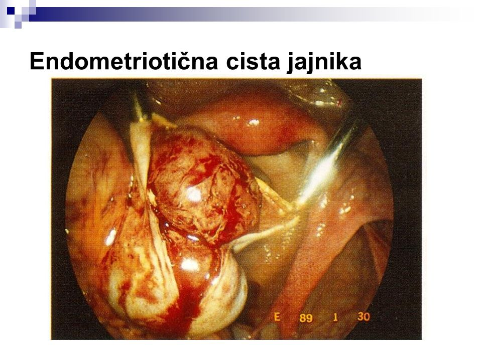 Endometriotična cista jajnika