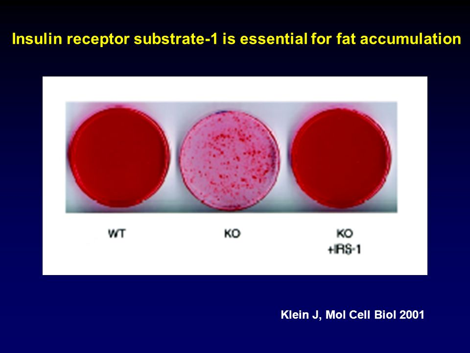 Insulin receptor substrate-1 is essential for fat accumulation