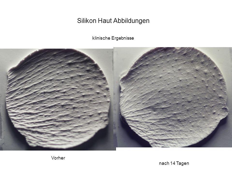 Silikon Haut Abbildungen