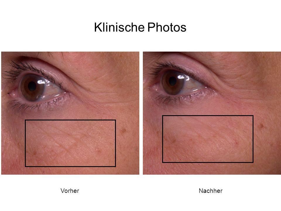 Klinische Photos Vorher Nachher