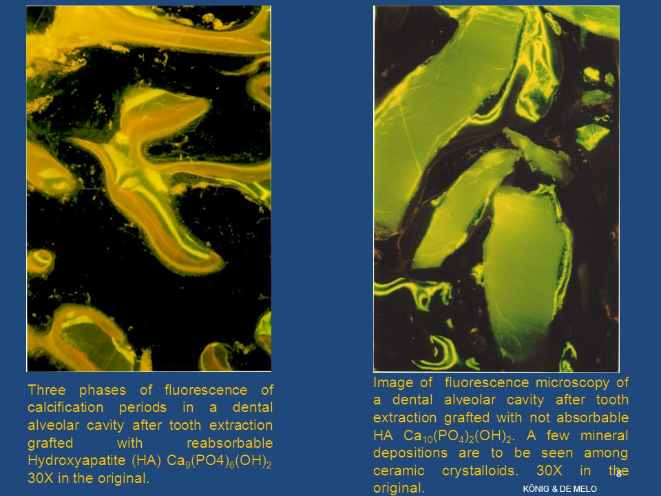 Image of fluorescence microscopy of a dental alveolar cavity after tooth extraction grafted with not absorbable HA Ca10(PO4)2(OH)2. A few mineral depositions are to be seen among ceramic crystalloids. 30X in the original.