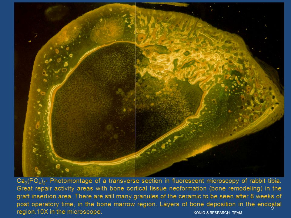Ca3(PO4)2- Photomontage of a transverse section in fluorescent microscopy of rabbit tibia. Great repair activity areas with bone cortical tissue neoformation (bone remodeling) in the graft insertion area. There are still many granules of the ceramic to be seen after 8 weeks of post operatory time, in the bone marrow region. Layers of bone deposition in the endostal region.10X in the microscope.