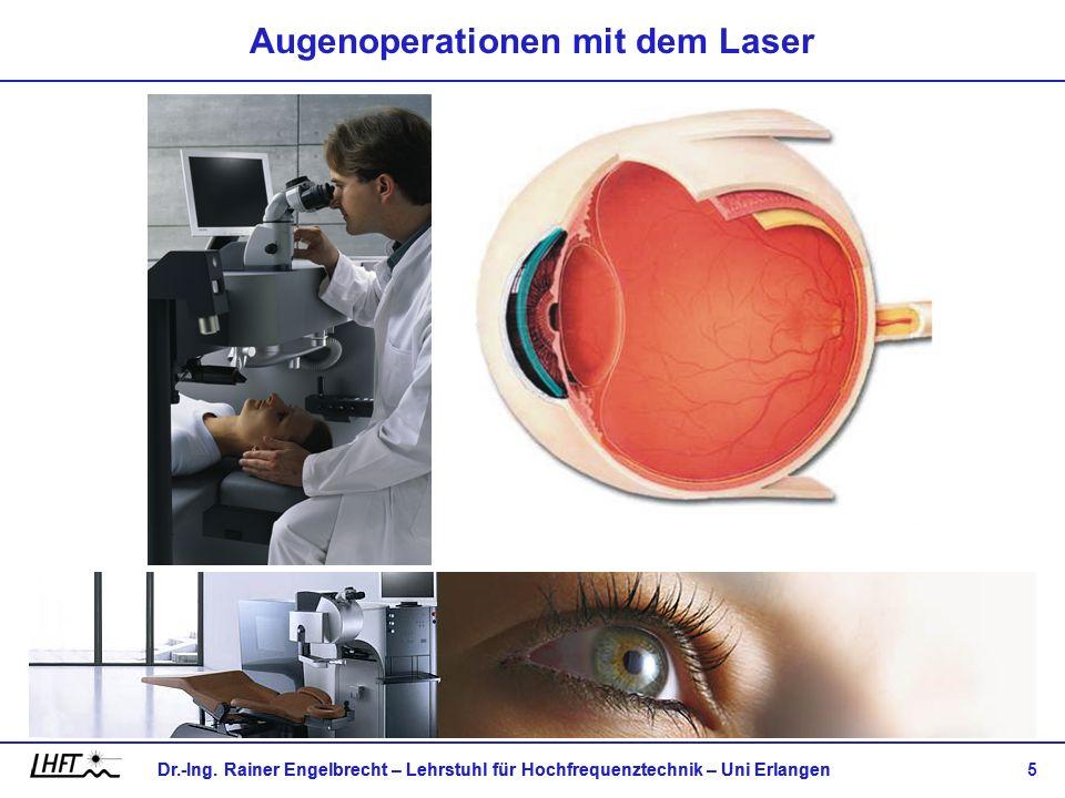 Augenoperationen mit dem Laser