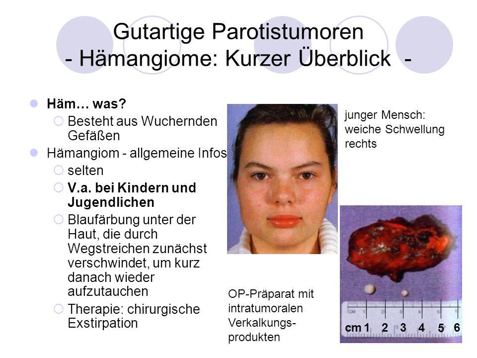 Gutartige Parotistumoren - Hämangiome: Kurzer Überblick -